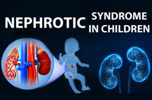 Nephrotic syndrome in children_https://saikidneycare.com