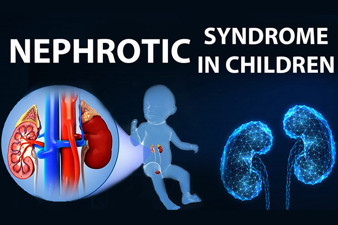 NEPHROTIC SYNDROME IN CHILDREN