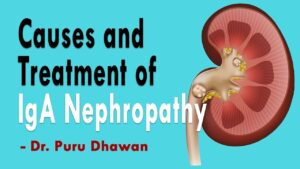 Causes and Treatment of IgA Nephropathy