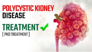 Polycystic Kidney Disease Treatment PKD Treatment